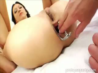 Anal Prolapsing At The Gynecologist